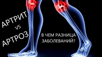 Артрит и артроз: в чем разница между заболеваниями суставов?