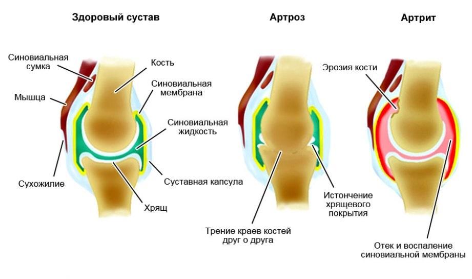 Уменьшение трения между суставами, какая ткань снимок тазобедренного сустава ребенка